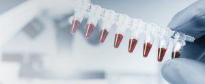 Muestras de sangre del cordón umbilical